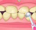 Návštěva u zubaře hra online